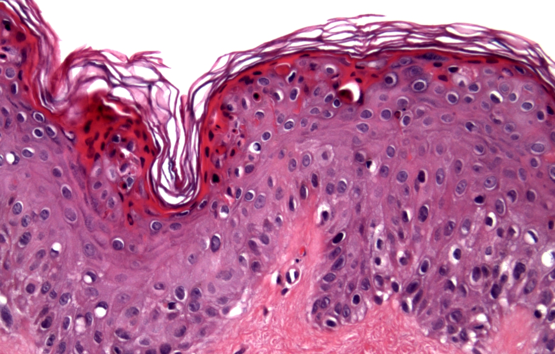 Dermatopathology | definition of dermatopathology by ...